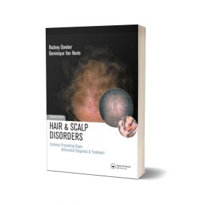 Hair and Scalp Disorders Common Presenting Signs Differential Diagnosis